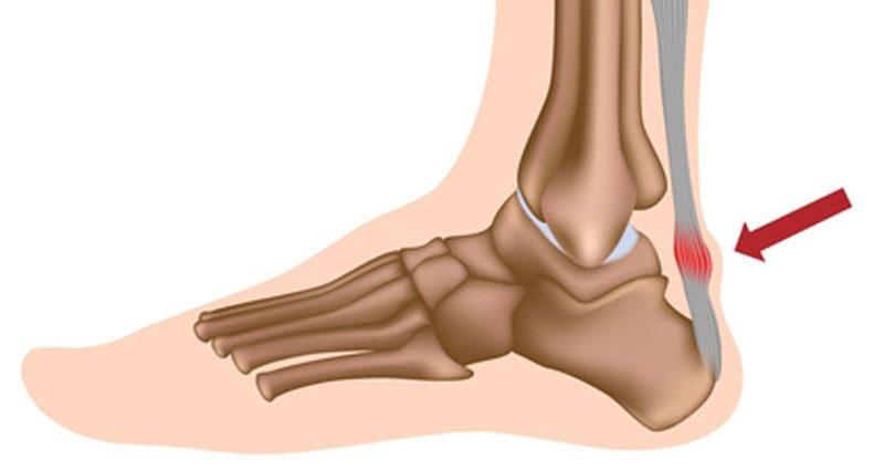 achilies tendonitis st augustine